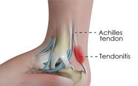 achilles tendon tendonitis