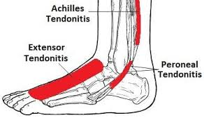 tendonitis of the ankle