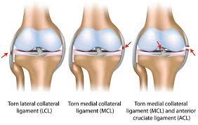 ligament sprains