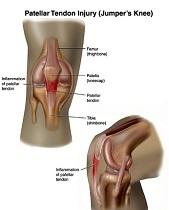 tendonitis knee